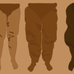 Image of four sets of legs showing the affects of Lipedema from stage 1 to stage 4 with Lipedema fat disorder.
