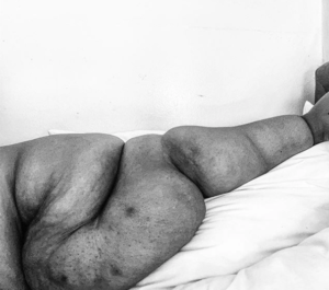 Image of Brena Jeans arms and the severity of the condition.