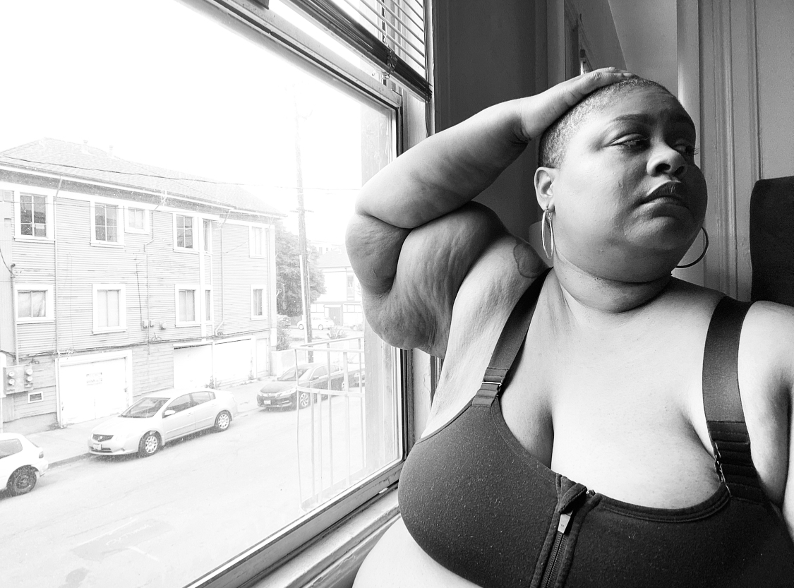 Black and white image of me. I'm a fat, black, bald woman with Lipedema. I'm sitting next to my 2nd floor apartment window. My right elbow is resting on the window and my right hand is resting on top of my head. I'm looking away from the window and the camera. I'm wearing a black sports bra and the folds in my arm can be seen.